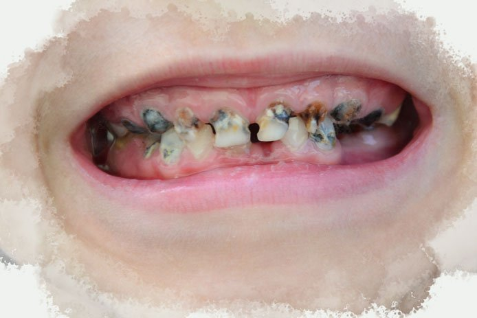 Tooth Decay/Cavities